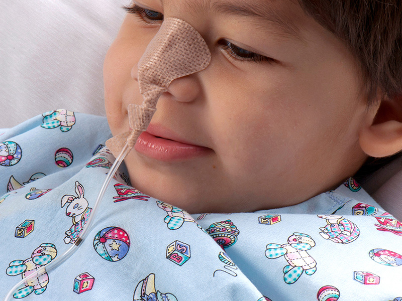 鼻飼管固定裝置